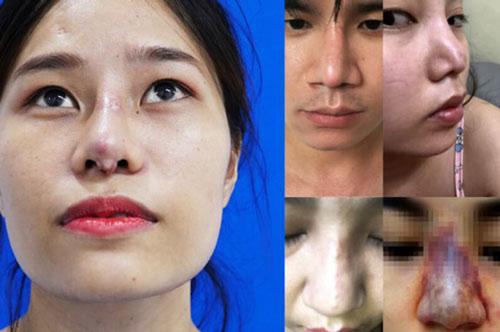 lỗ mũi bị hôi do nhiễm trùng sau nâng