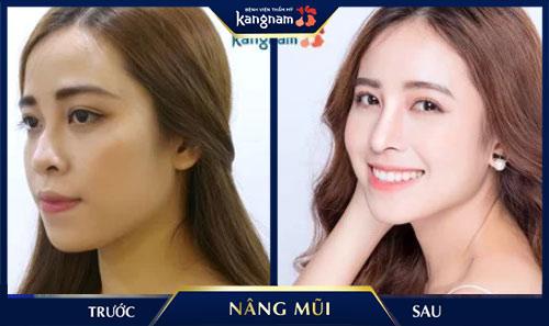 sửa mũi nhiễm trùng sau nâng tại kangnam