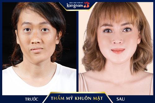 thẩm mỹ hàm mặt kangnam
