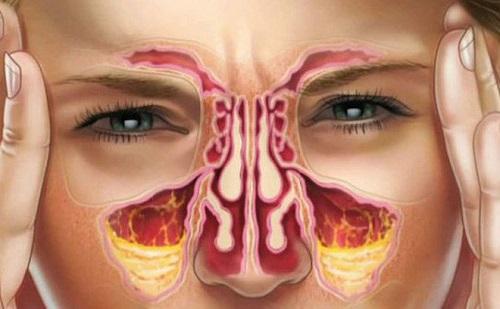biểu hiện của lệch vách ngăn mũi