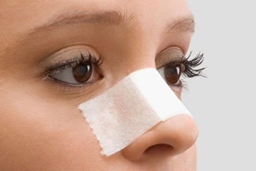 lệch vách ngăn mũi do chấn thương