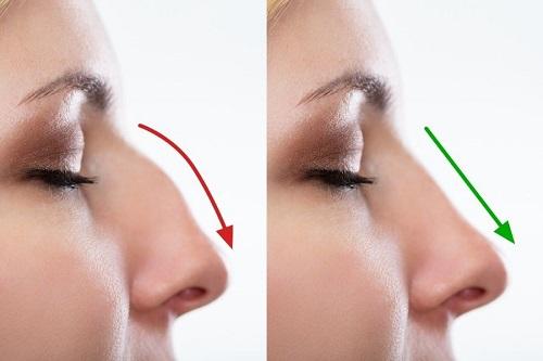 nâng mũi cấu trúc surgiform có ưu nhược điểm gì