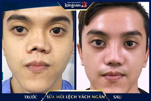 phẫu thuật chỉnh vách ngăn mũi bị lệch