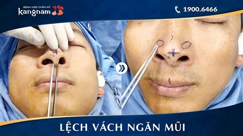 sau mổ vẹo vách ngăn mũi bao lâu bình phục