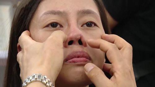 tháo sụn nâng mũi cấu trúc do gặp biến chứng