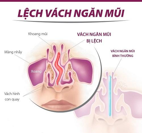 thê nào là lệch vách ngăn mũi